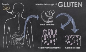 Blackboard with drawings showing damaged intestines from celiac disease.