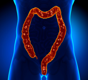 Picture showing a body outline with red sensitive bowels.
